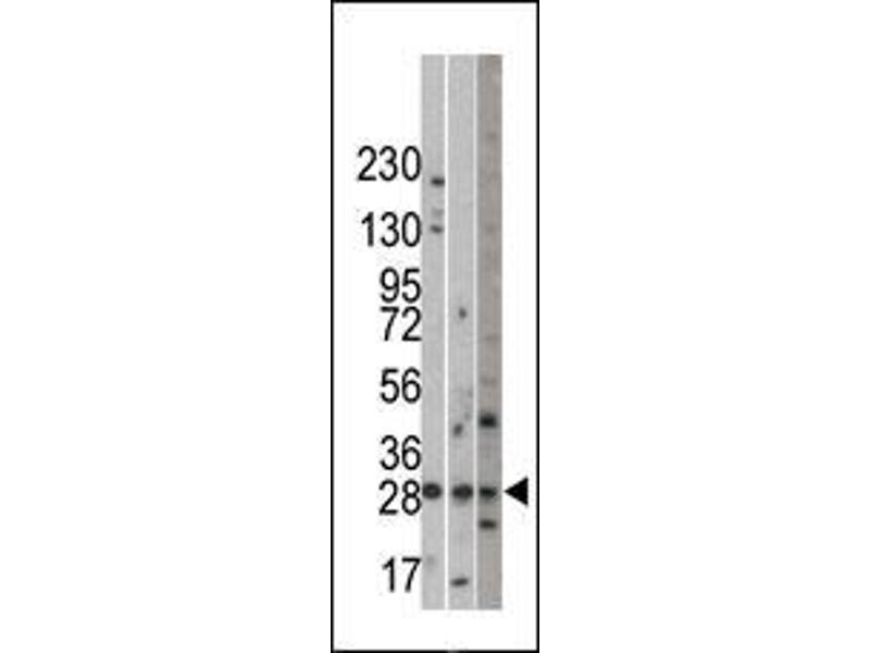Western Blotting (WB) image for anti-Ubiquitin Protein Ligase E3 Component N-Recognin 5 (UBR5) (C-Term) antibody (ABIN388824)