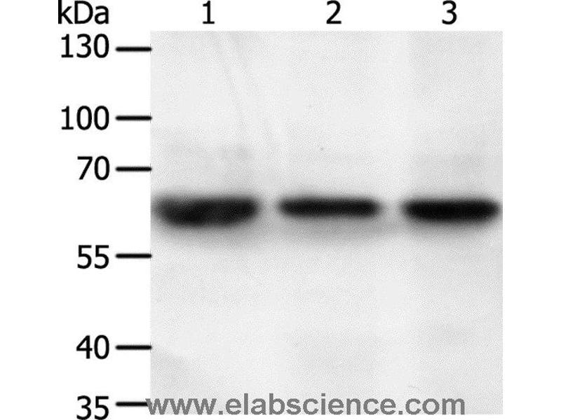 Western Blotting (WB) image for anti-Syntaxin Binding Protein 2 (STXBP2) antibody (ABIN2428907)