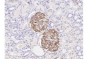 Image no. 1 for anti-Complement Component Receptor 1 (CD35) (CR1) (N-Term) antibody (ABIN2681814)