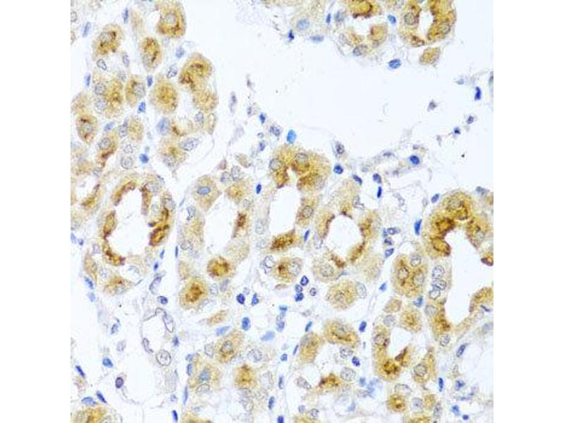 Immunohistochemistry (IHC) image for anti-Teratocarcinoma-Derived Growth Factor 1 (TDGF1) antibody (ABIN1875048)