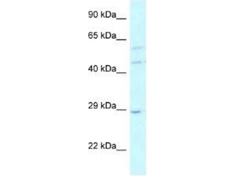 Western Blotting (WB) image for anti-LSM14A, SCD6 Homolog A (S. Cerevisiae) (LSM14A) antibody (ABIN4891109)