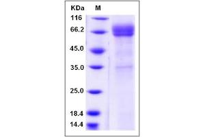 Image no. 1 for CD1b (CD1B) (AA 1-303) protein (Fc Tag) (ABIN2004815)