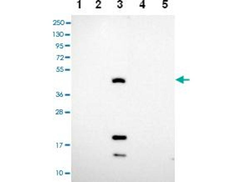 Western Blotting (WB) image for anti-Carcinoembryonic Antigen-Related Cell Adhesion Molecule 16 (CEACAM16) antibody (ABIN5575203)
