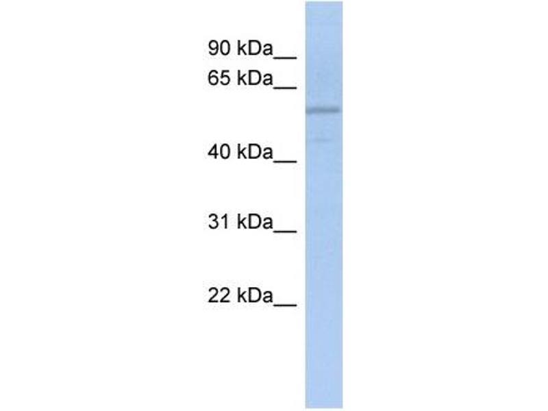 Western Blotting (WB) image for anti-ADPGK antibody (ADP-Dependent Glucokinase) (N-Term) (ABIN501315)