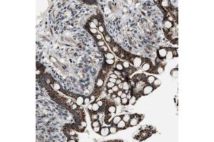 Immunohistochemistry (Paraffin-embedded Sections) (IHC (p)) image for anti-Chimerin (Chimaerin) 2 (CHN2) antibody (ABIN4297936)