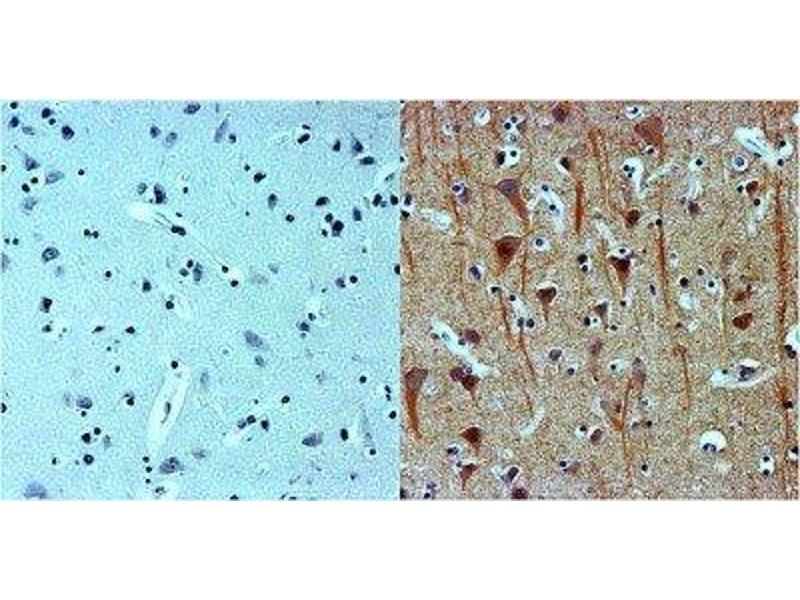 Immunohistochemistry (IHC) image for anti-TUBB3 antibody (Tubulin, Beta, 3) (ABIN4284545)