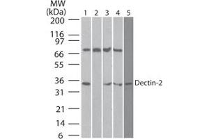 Image no. 2 for anti-C-Type Lectin Domain Family 6, Member A (CLEC6A) (AA 75-125) antibody (ABIN959984)