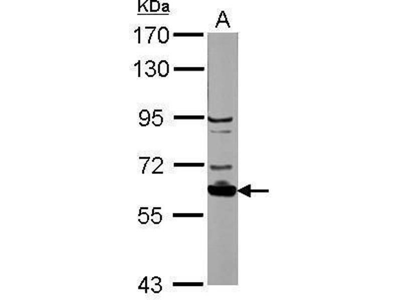 Western Blotting (WB) image for anti-Ribosomal Protein S6 Kinase, 70kDa, Polypeptide 1 (RPS6KB1) (Center) antibody (ABIN2855568)