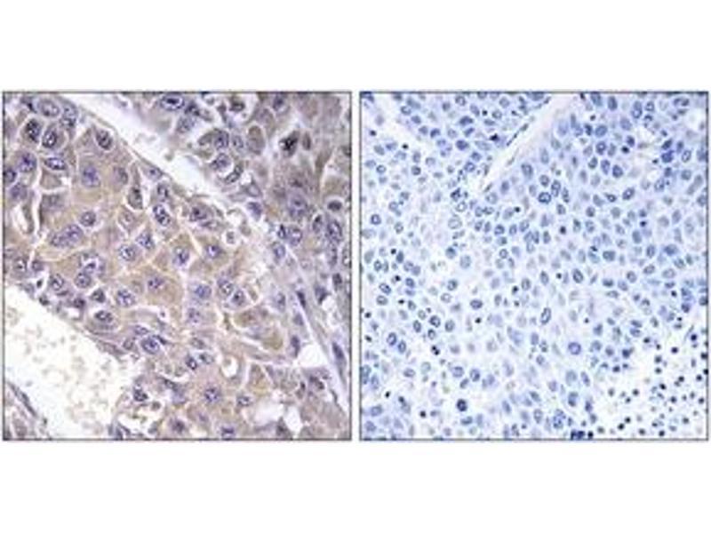 Immunohistochemistry (IHC) image for anti-UDP-Gal:betaGlcNAc beta 1,4- Galactosyltransferase, Polypeptide 3 (B4GALT3) (AA 271-320) antibody (ABIN1534693)