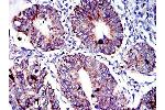 Immunohistochemistry (IHC) image for anti-Apoptosis-Inducing Factor, Mitochondrion-Associated, 1 (AIFM1) antibody (ABIN968950)
