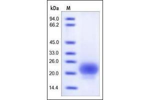 Image no. 1 for R-Spondin 1 (RSPO1) (AA 21-146) protein (His tag) (ABIN2181686)