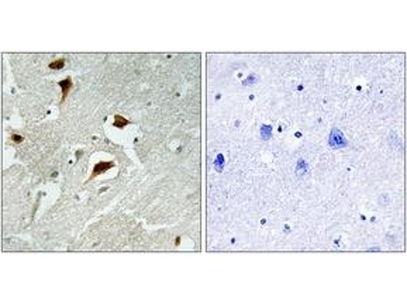 Immunohistochemistry (IHC) image for anti-Eukaryotic Translation Initiation Factor 4E Binding Protein 1 (EIF4EBP1) (AA 35-84), (pThr69) antibody (ABIN1531251)