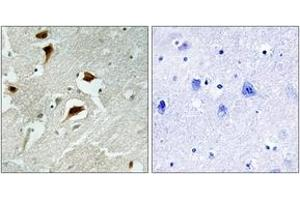 Immunohistochemistry (IHC) image for anti-EIF4EBP1 antibody (Eukaryotic Translation Initiation Factor 4E Binding Protein 1) (pThr69) (ABIN1531251)