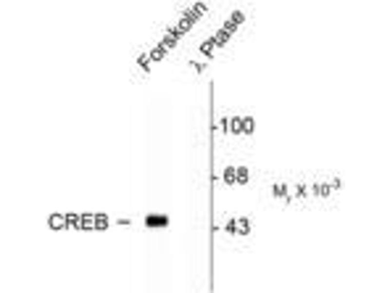 image for anti-cAMP Responsive Element Binding Protein 1 (CREB1) (pSer133) antibody (ABIN228620)