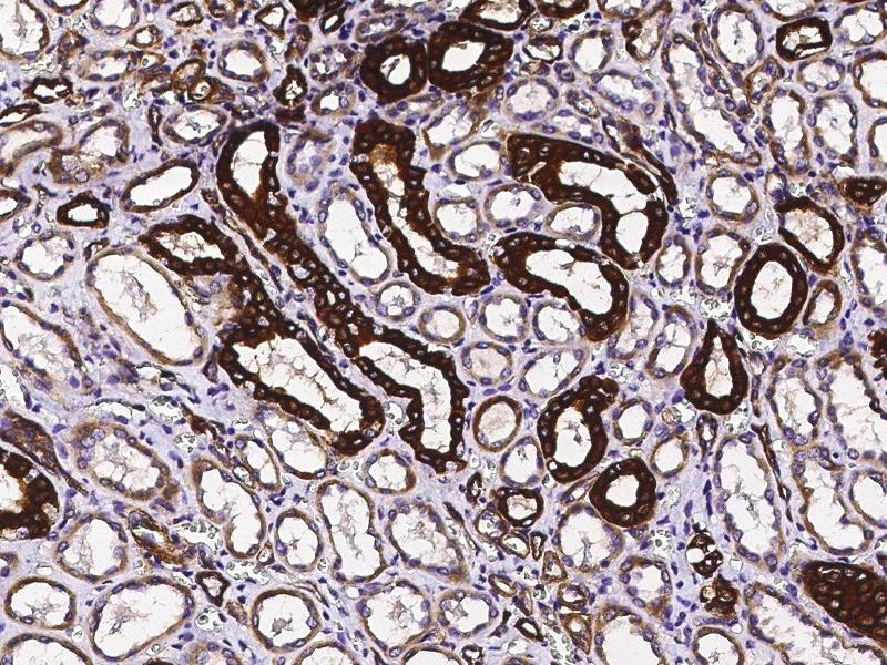 Immunohistochemistry (Paraffin-embedded Sections) (IHC (p)) image for anti-Tumor Necrosis Factor Receptor Superfamily, Member 10d, Decoy with Truncated Death Domain (TNFRSF10D) (AA 1-211) antibody (ABIN2649224)
