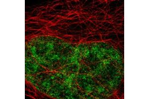 Immunofluorescence (IF) image for Goat anti-Rabbit IgG antibody (Atto 647N) (ABIN2668999)