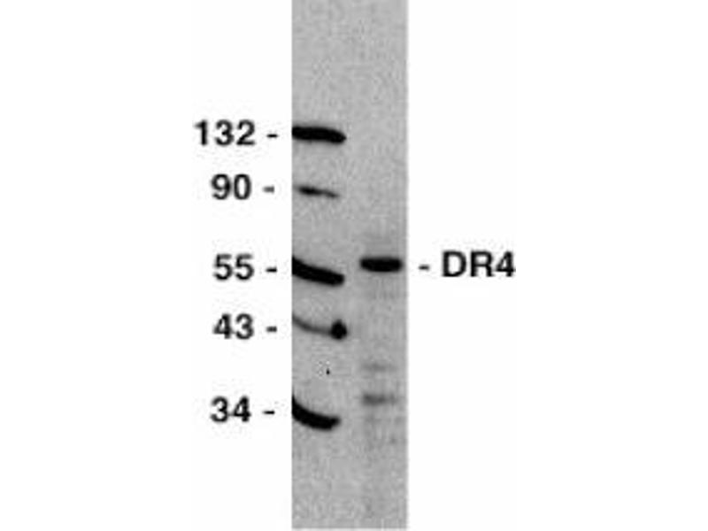 Western Blotting (WB) image for anti-TNFRSF10A antibody (Tumor Necrosis Factor Receptor Superfamily, Member 10a) (C-Term) (ABIN499762)