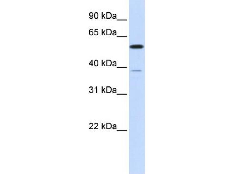 Western Blotting (WB) image for anti-Protein Phosphatase 2, Regulatory Subunit B', alpha (PPP2R5A) (N-Term) antibody (ABIN2783198)