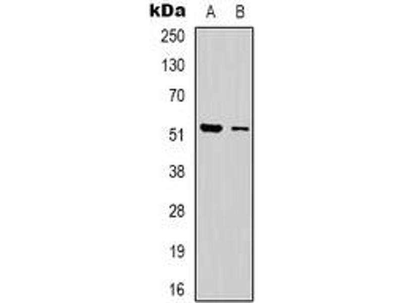 Western Blotting (WB) image for anti-erythrocyte Membrane Protein Band 4.9 (Dematin) (EPB49) (C-Term) antibody (ABIN2801198)