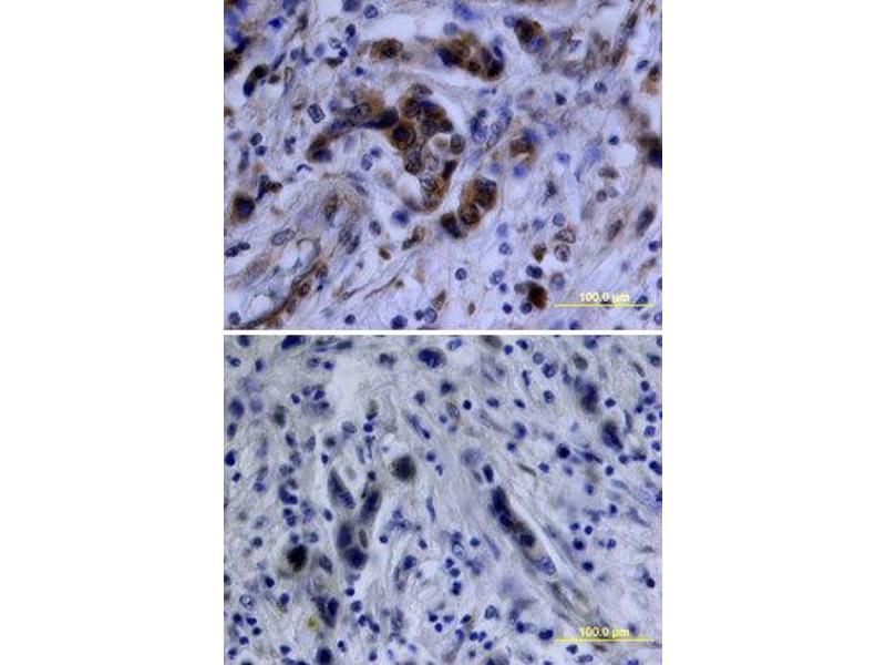 Immunohistochemistry (IHC) image for anti-V-Akt Murine Thymoma Viral Oncogene Homolog 1 (AKT1) (pSer473) antibody (ABIN4900619)