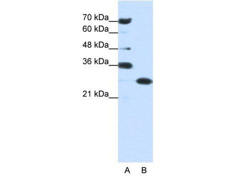Western Blotting (WB) image for anti-Acidic (Leucine-Rich) Nuclear phosphoprotein 32 Family, Member A (ANP32A) (Middle Region) antibody (ABIN183894)