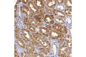 Immunohistochemistry (Paraffin-embedded Sections) (IHC (p)) image for anti-Renin Binding Protein (RENBP) antibody (ABIN4349989)