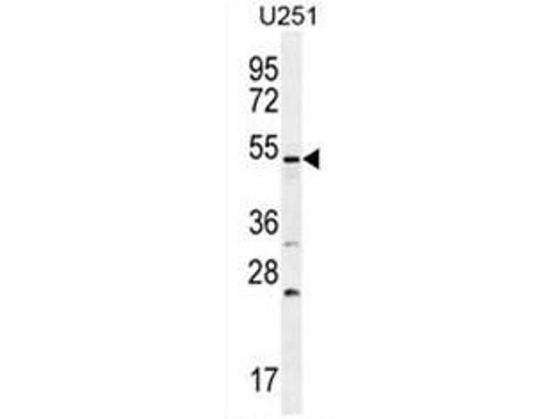Image no. 2 for anti-Bone Morphogenetic Protein Receptor, Type IB (BMPR1B) (AA 141-168), (Middle Region) antibody (ABIN951454)
