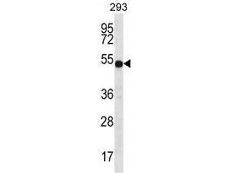 Western Blotting (WB) image for anti-ATPase, H+ Transporting, Lysosomal 56/58kDa, V1 Subunit B1 (ATP6V1B1) (AA 471-501), (C-Term) antibody (ABIN950570)