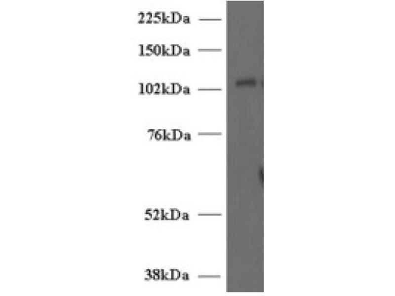 image for anti-Unc-13 Homolog D (C. Elegans) (UNC13D) (Internal Region) antibody (ABIN374716)