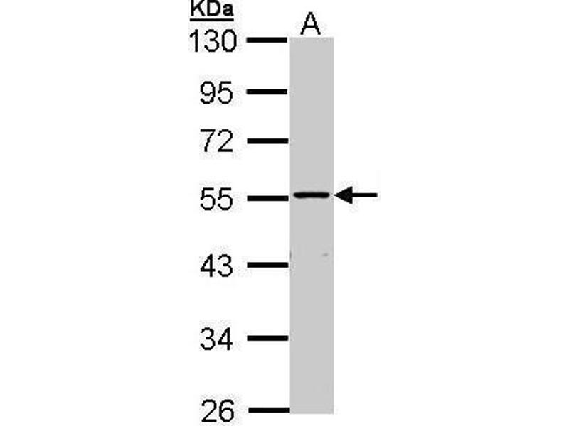 Western Blotting (WB) image for anti-Mitogen-Activated Protein Kinase Kinase Kinase 8 (MAP3K8) (Center) antibody (ABIN2855464)