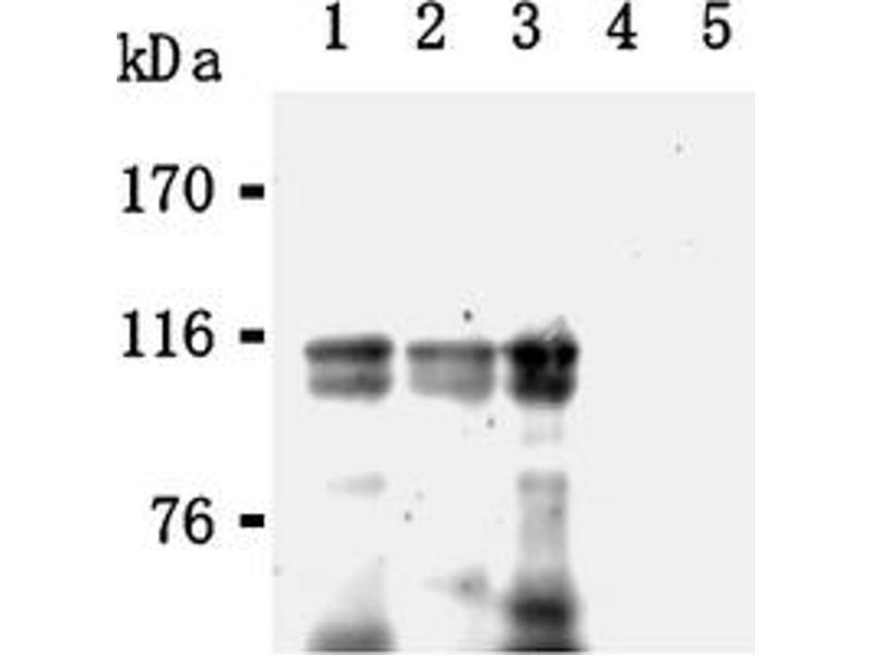 Western Blotting (WB) image for anti-Promyelocytic Leukemia (PML) antibody (ABIN567791)