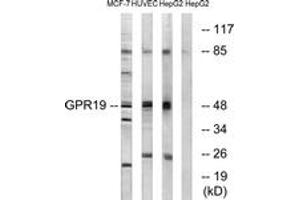 Image no. 1 for anti-G Protein-Coupled Receptor 19 (GPR19) (AA 361-410) antibody (ABIN1535737)