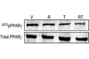 Western Blotting (WB) image for anti-Peroxisome Proliferator-Activated Receptor gamma (PPARG) (AA 250-300), (pSer273) antibody (ABIN1387919)