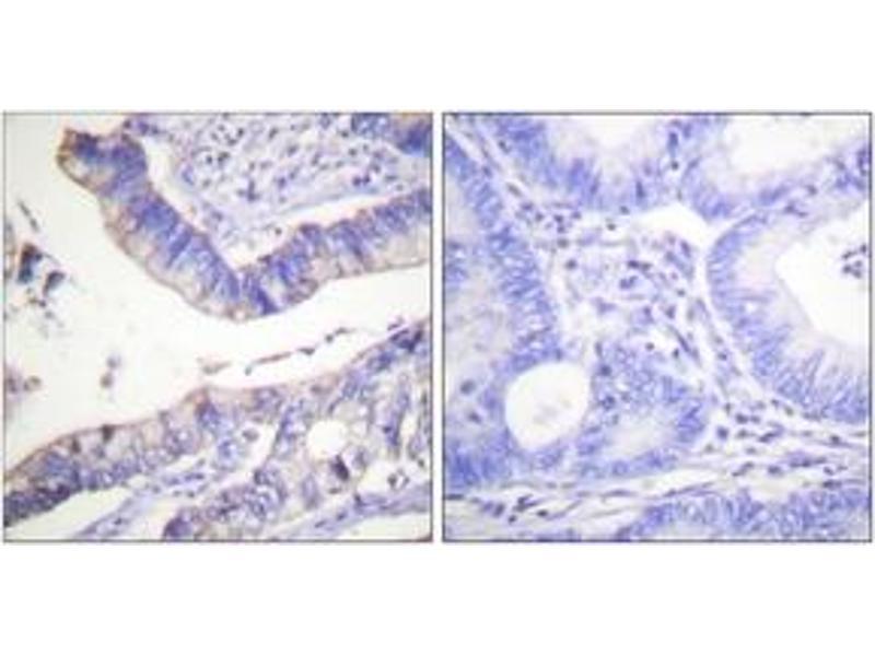 Immunohistochemistry (IHC) image for anti-B-Cell CLL/lymphoma 2 (BCL2) (AA 46-95) antibody (ABIN1532505)