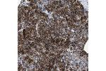 Immunohistochemistry (Paraffin-embedded Sections) (IHC (p)) image for anti-Potassium Inwardly-Rectifying Channel, Subfamily J, Member 5 (KCNJ5) antibody (ABIN4329042)