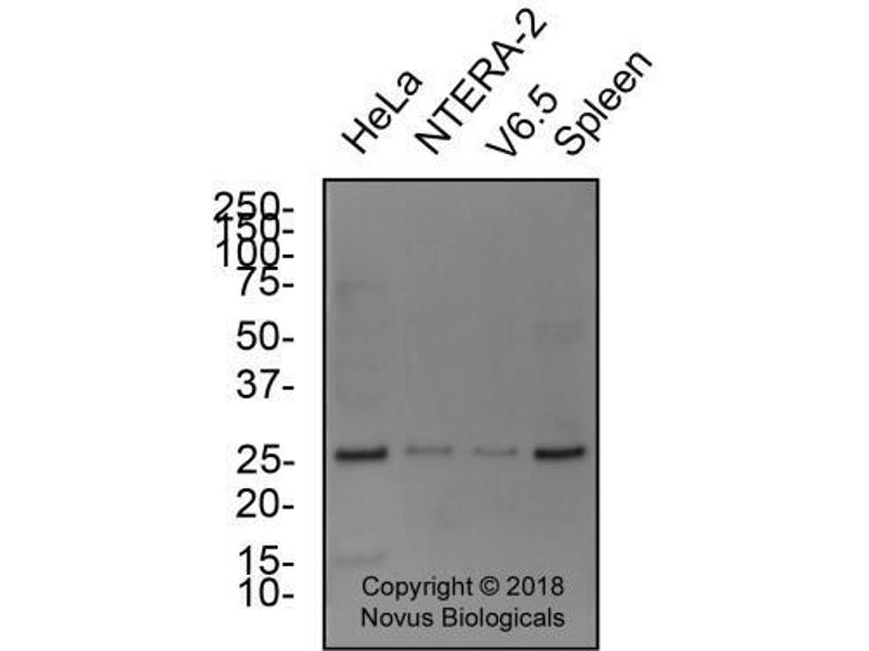 Western Blotting (WB) image for anti-Teratocarcinoma-Derived Growth Factor 1 (TDGF1) (AA 1-50), (N-Term) antibody (ABIN151145)