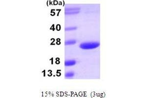Image no. 1 for Tumor Necrosis Factor (Ligand) Superfamily, Member 15 (TNFSF15) (AA 72-251) protein (His tag) (ABIN666796)
