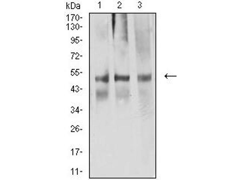 Western Blotting (WB) image for anti-ARP3 Actin-Related Protein 3 Homolog (Yeast) (ACTR3) (AA 287-418) antibody (ABIN5611287)