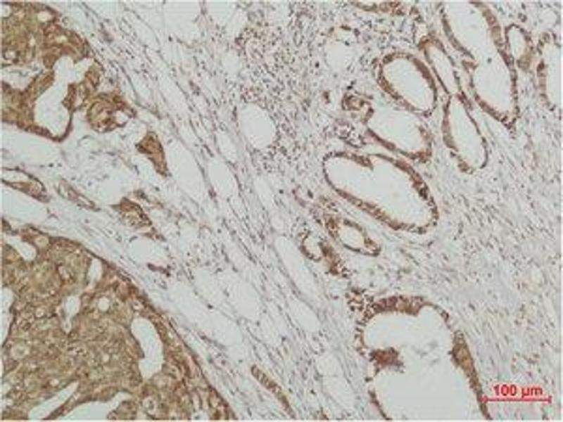 Immunohistochemistry (IHC) image for anti-Mitogen-Activated Protein Kinase 6 (MAPK6) antibody (ABIN3181516)