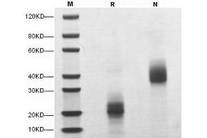 Image no. 1 for Colony Stimulating Factor 1 (Macrophage) (CSF1) (AA 33-187) (Active) protein (ABIN2018209)