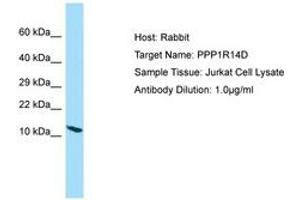 Image no. 1 for anti-Protein Phosphatase 1, Regulatory (Inhibitor) Subunit 14D (PPP1R14D) (AA 9-58) antibody (ABIN6750132)