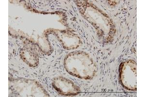 Immunostaining (ISt) image for anti-IRF9 Antikörper (Interferon Regulatory Factor 9) (AA 1-393) (ABIN564508)
