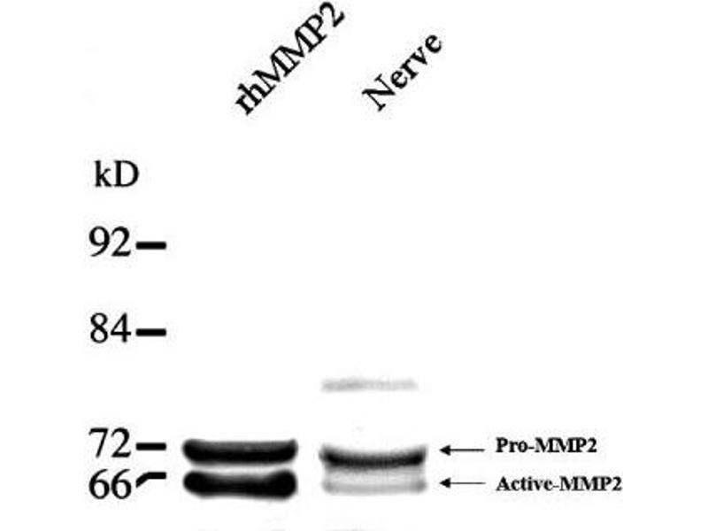 Western Blotting (WB) image for anti-MMP2 Antikörper (Matrix Metalloproteinase 2) (Internal Region) (ABIN268224)