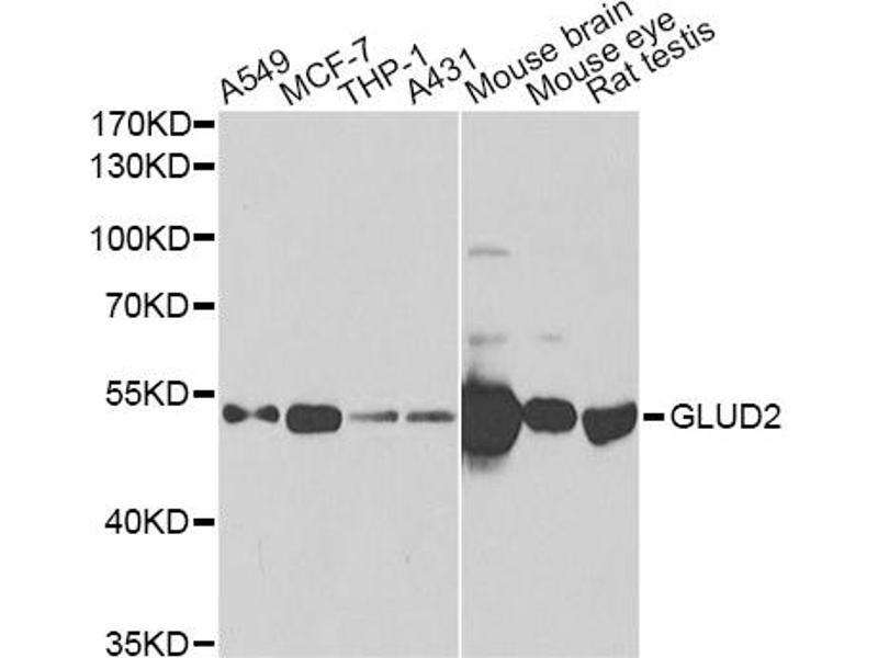 Image no. 1 for anti-Glutamate Dehydrogenase 2 (GLUD2) antibody (ABIN2562844)