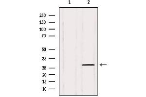 Image no. 3 for anti-PHD Finger Protein 19 (PHF19) antibody (ABIN6264174)