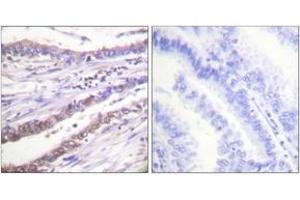 Immunohistochemistry (IHC) image for anti-Cyclin A antibody (Cyclin A2) (ABIN1533247)