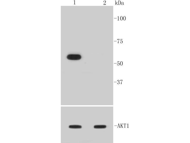 Western Blotting (WB) image for anti-V-Akt Murine Thymoma Viral Oncogene Homolog 1 (AKT1) (pSer473) antibody (ABIN5557411)