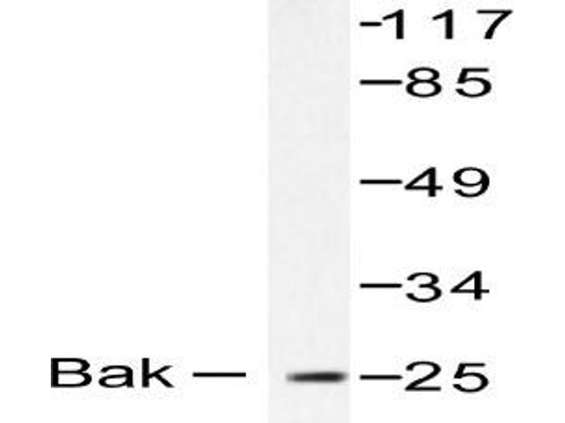 oligomycin the killer antibody Oligomycin treatment causes growth suppression despite maintained atp bak bcl-2 agonist/killer bax bcl-2 associated x protein bcl-2 b-cell lymphoma-2 bcl-xl b-cell lymphoma- extra large bh3 bcl-2 homology domain 3.
