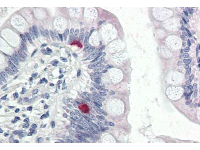 Immunohistochemistry (Paraffin-embedded Sections) (IHC (p)) image for anti-Coatomer Protein Complex, Subunit alpha (COPA) (AA 1-19) antibody (ABIN337288)