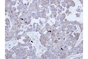 Immunohistochemistry (Paraffin-embedded Sections) (IHC (p)) image for anti-Colony Stimulating Factor 2 Receptor, Beta, Low-Affinity (Granulocyte-Macrophage) (CSF2RB) (N-Term) antibody (ABIN441763)